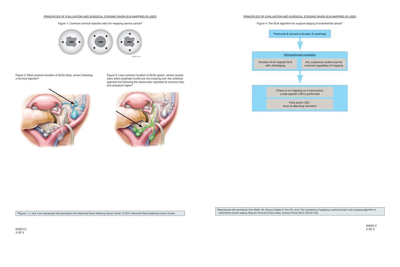 endometrium rák nccn irányelvek