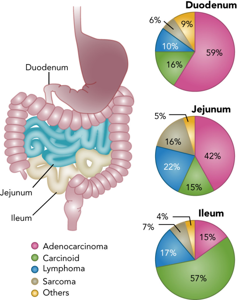 Small Bowel Adenocarcinoma Etiology Presentation And Molecular Alterations In Journal Of The National Comprehensive Cancer Network Volume 17 Issue 9 2019