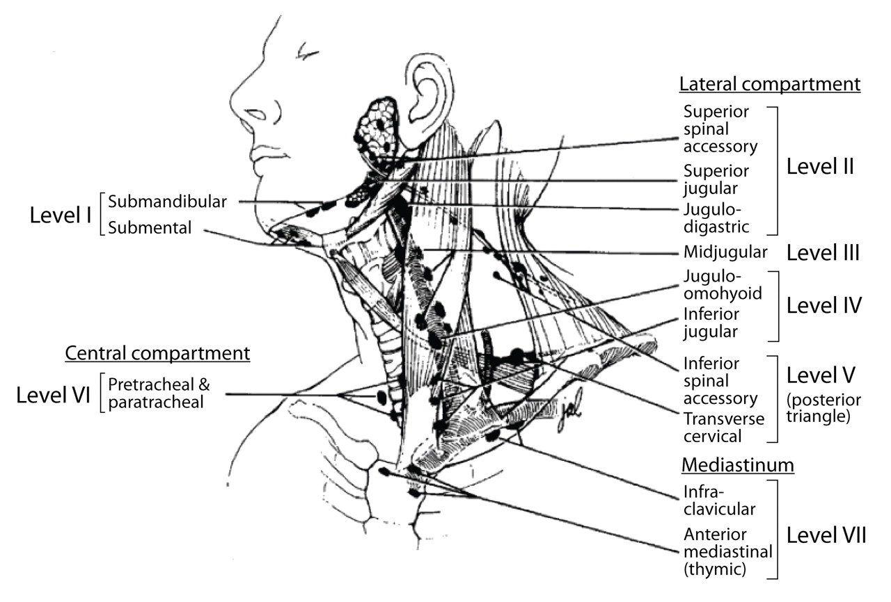 Medullary Thyroid Carcinoma: Management of Lymph Node